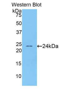 abbexa Acetylcholinesterase Antibody SKU: abx101931 package