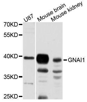 abbexa GNAI1 Antibody SKU: abx123709 package