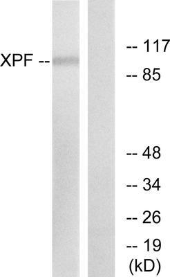 abbexa XPF Antibody SKU: abx013253 package