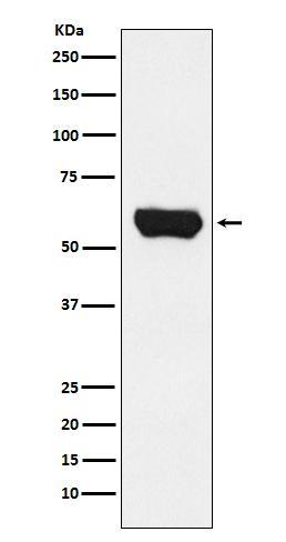 Boster Bio Anti-Lck Monoclonal Antibody SKU: M00425 package