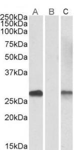 OriGene DYDC1 (142-154) Antibody SKU: TA311571 package