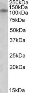 OriGene GRIN3B (C-term) Antibody SKU: TA311569 package