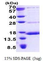 US Biological NDUFS6, Recombinant, Human, 28-124aa, His-Tag (NADH Dehydrogenase [Ubiquinone] Iron-sulfur Protein 6, CI-13Ka, CI-13kD-A, CI13KDA) SKU: 137136 package