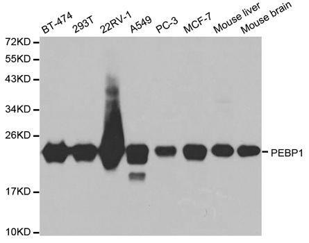 St John's Laboratory Anti-PEBP1 Antibody SKU: STJ24954 package
