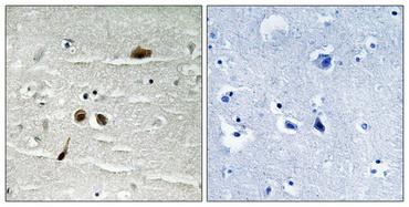 St John's Laboratory Anti-Phospho-MDC1 (S513) antibody SKU: STJ91260 package