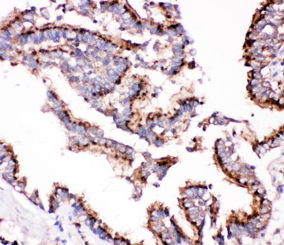 US Biological Rabbit Anti-human Cathepsin D polyclonal antibody SKU:303185 package