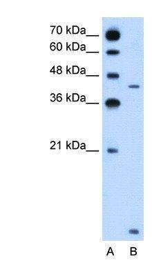 US Biological Rabbit Anti-human SLC46A3 polyclonal antibody SKU:138379 package