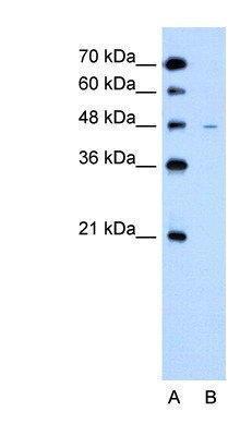 US Biological Rabbit Anti-human SLC43A3 polyclonal antibody SKU:138378 package