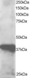 GIPC3 Antibody SKU: abx432748