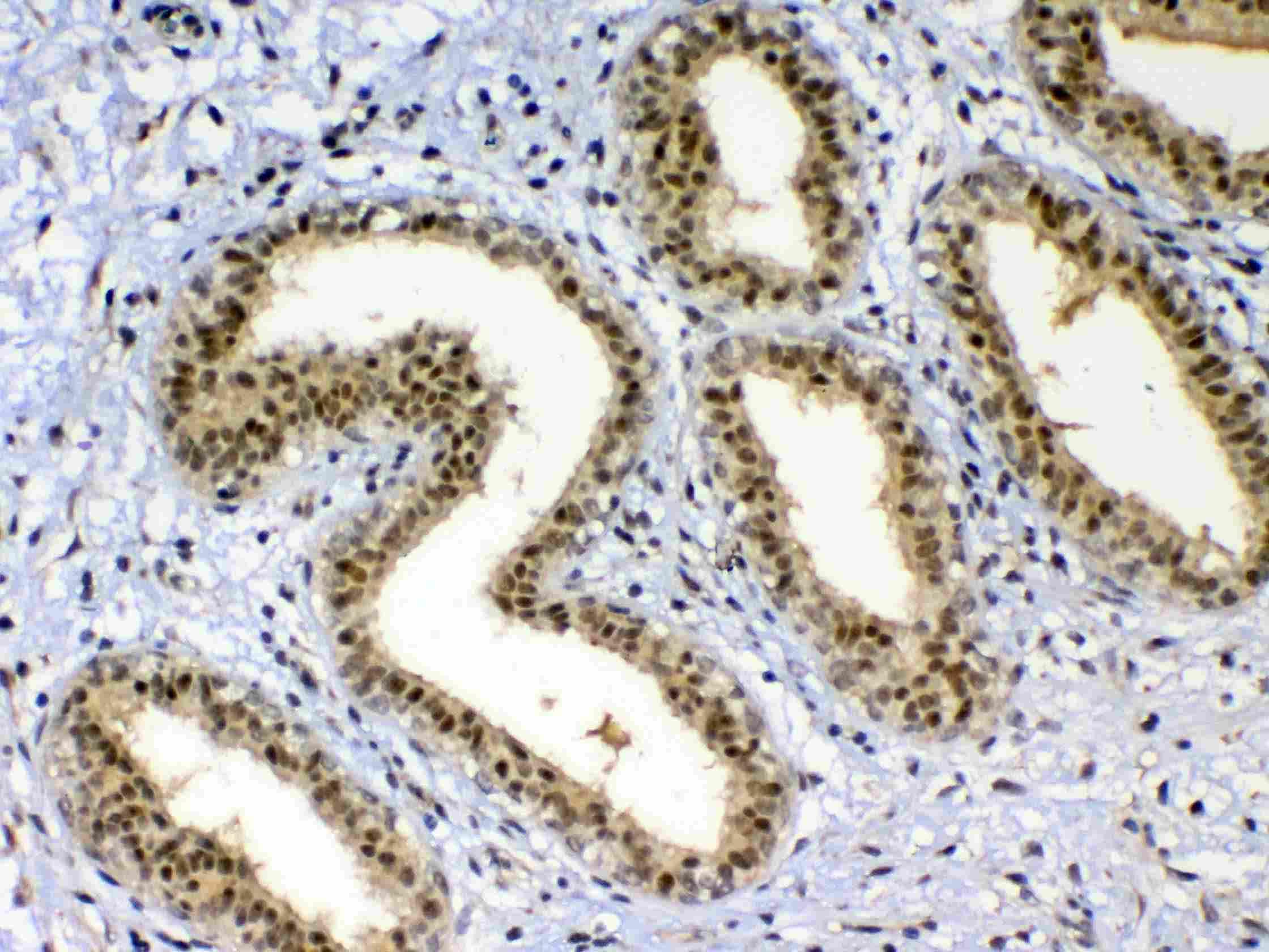 Anti-XRCC1 Picoband antibody SKU: A00571