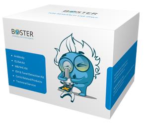 FITC + POD Conjugated anti-Mouse IgG SABC Kit SKU: SA1080