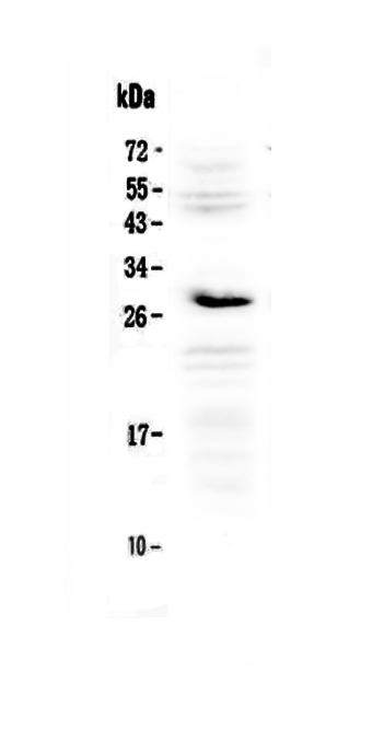 Anti-IL1RA Picoband Antibody SKU: A00651-4
