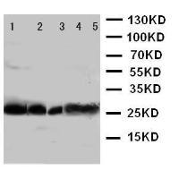 Anti-UCP1 Antibody SKU: PA1982